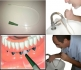 Hig Rei Irrigador Oral para Limpeza de Implantes