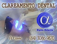 Clareamento dental à laser - (84) 3086-9870