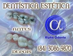 Dent�stica est�tica sorriso perfeito - (84) 3086-9870