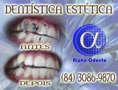 RestauraÇÃo dentária estética sorriso perfeito - (84) 3086-9870
