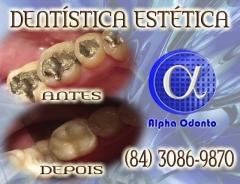 Dentística estética sorriso perfeito - (84) 3086-9870