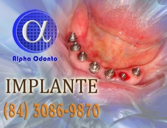Implante dentário inferior total - (84) 3086-9870