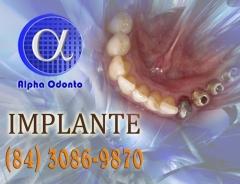 Implante dent�rio inferior parcial - (84) 3086-9870