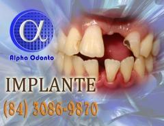 Implante dentário individual - (84) 3086-9870