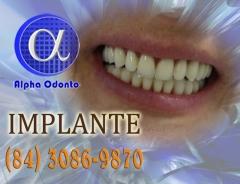 Implante dentário total - (84) 3086-9870