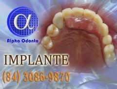 Implante dentário parcial superior - (84) 3086-9870