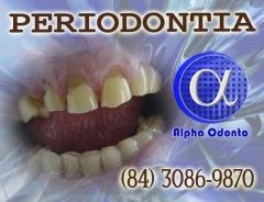 Periodontia - abfraÇÃo dentária tratamento com correÇÃo total - (84) 3086-9870