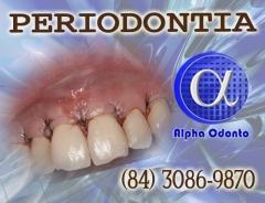 Periodontia - enxerto gengival - (84) 3086-9870