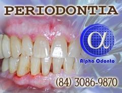 Periodontia - periodontite tratamento exclusivo (84) 3086-9870