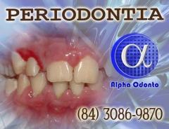 Periodontia - lesÃo gengival tratamento definitivo - (84) 30869870