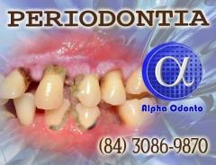 Periodontia - tratamentos exclusivos - (840 3086-9879