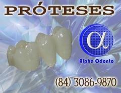 Próteses dentárias - coroas estéticas - (84) 3086-9870