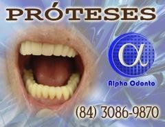 Próteses dentárias - totais estéticas - (84) 3086-9870