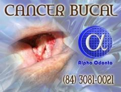 CÂncer bucal diagnosticado após perícia e biópsia - (84) 3086-9870