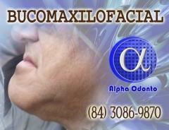 Bucomaxilo facial cirurgia ortognática retraÇÃo mandibular - (84) 3086-9870