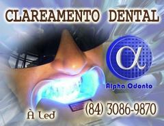 Clareamento dental a led - (84) 3086-9870
