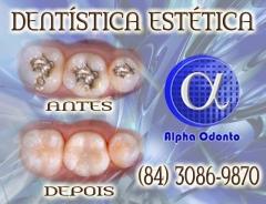 Dent�stica est�tica, perfei��o em restaura��o dent�ria - (84) 3086-9870