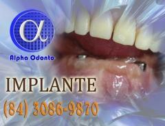 Implante dent�rio est�tico - (84) 3086-9870