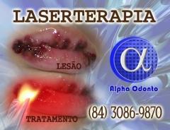 Laserterapia oral - (84) 3086-9870