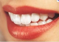Clínica dentária implante rj - foto 10