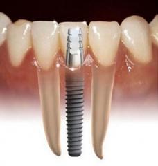 Cl�nica dent�ria implante rj - foto 5