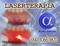 Laserterapia oral em natal - alpha odonto - (84) 3086-9870