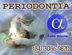 Periodontistas em natal - alpha odonto - (84) 3086-9870
