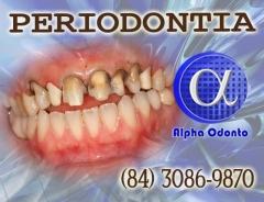 Periodontia em natal - alpha odonto - (84) 3086-9870