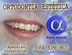 Ortodontia est�tica em natal - alpha odonto - (84) 3086-9870
