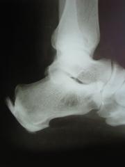 Raio x mostrando esporão de calcâneo em dois locais do pé