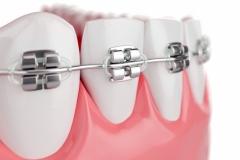 Ortodontia uberlandia