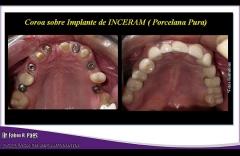 Implantes realizados