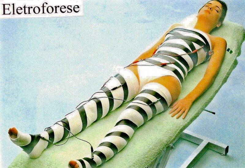 ELETROFORESE (Inchaços, Retenção Líquida e Celulite)
