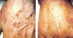 Clareamento de manchas faciais e m�os