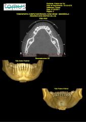 Tomografia cone beam realizada na tomus